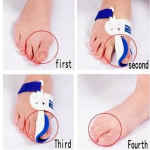 1 pair Bunion Adjuster Orthotics