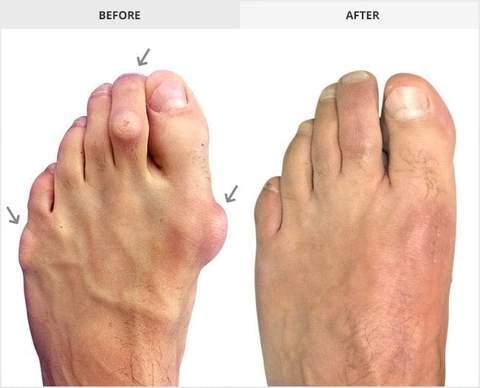 Orthopedic Hammer Toe Corrector